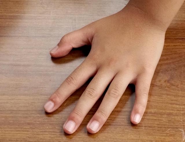 爪のピンクの部分(ネイルベッド)が少ない原因
