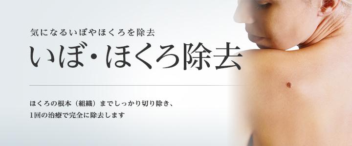 東京美容外科のほくろ除去